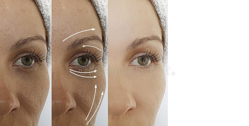 Les rides de la femme adulte provoquent une différence de vieillissement après la procédure de levée régénération régénération tr photographie stock