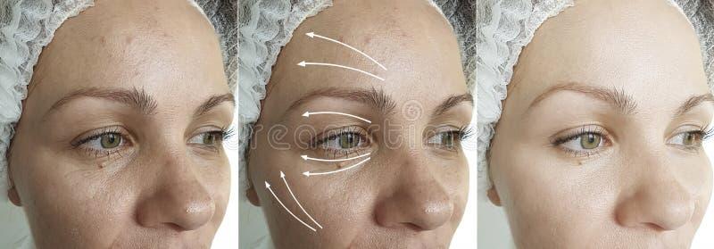 Les rides de la femme adulte provoquent une différence de vieillissement de l'oeil après la procédure de résultat la régénération photos stock