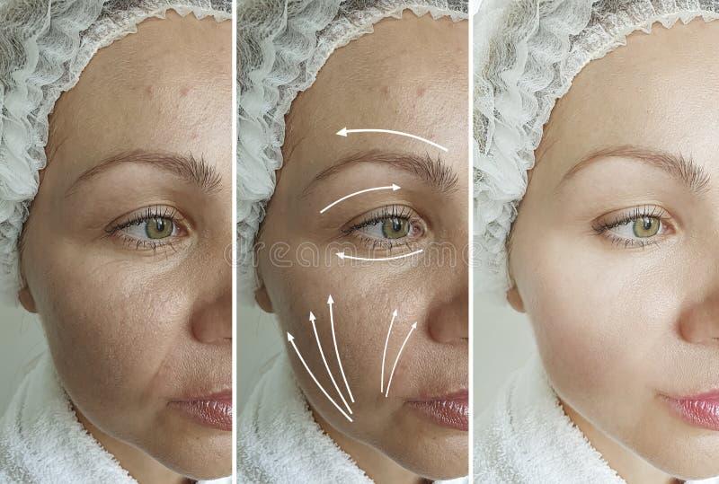 Les rides de visage des femmes adultes font une différence d'oeil après la procédure de levée régénération régénération traitemen photos stock