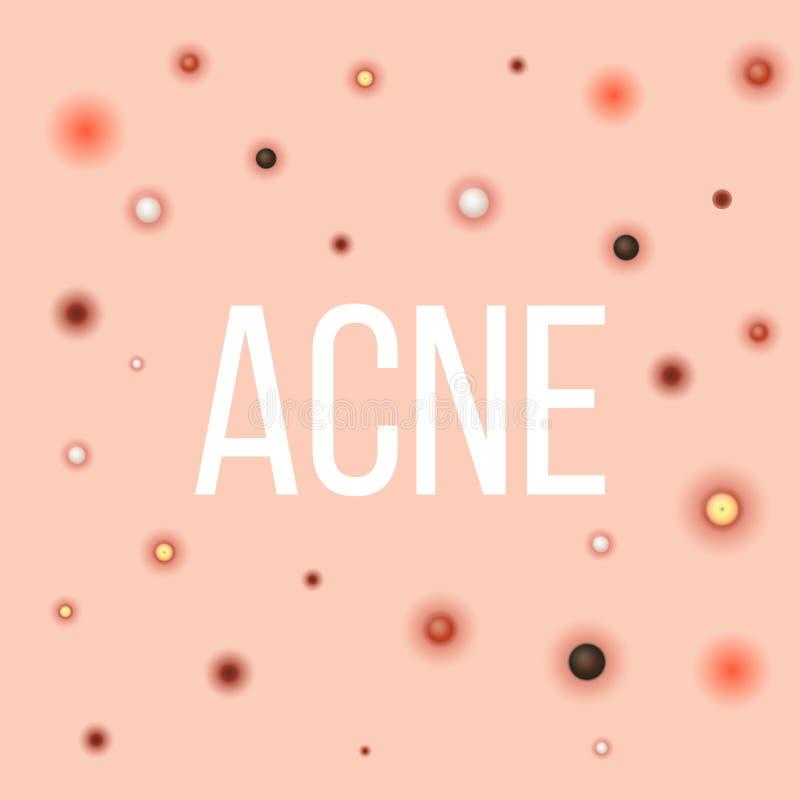 Les types créatifs d'illustration de vecteur d'acné, boutons, peau étudie à fond, point noir, whitehead, cicatrice, comedone, éta illustration stock