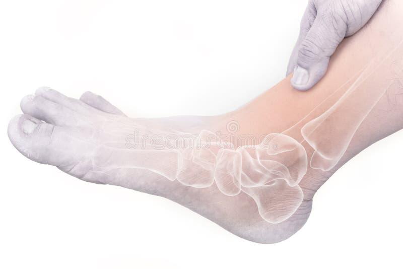 Lesión de los huesos de pie fotografía de archivo libre de regalías