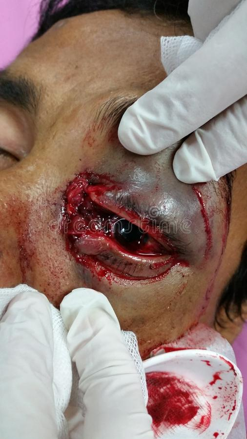 lesión del conducto lacrimal fotos de archivo libres de regalías