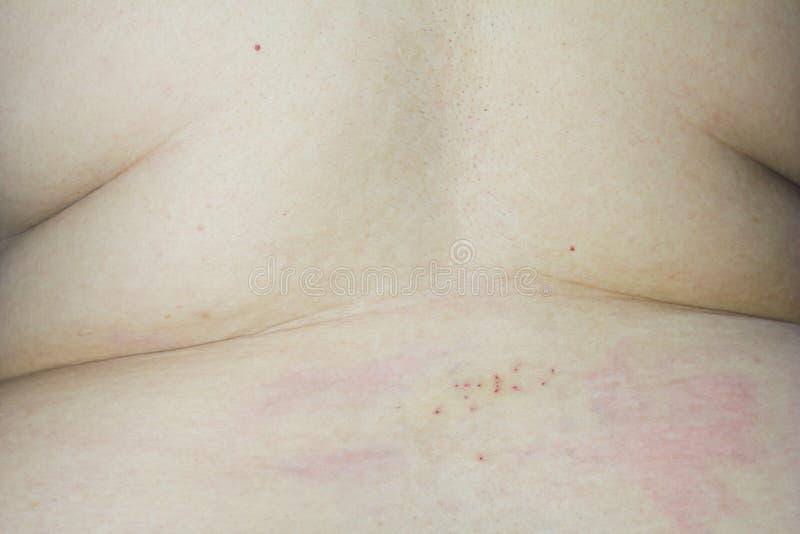 Lesion dordzeniowej anestezi zastrzyki fotografia royalty free