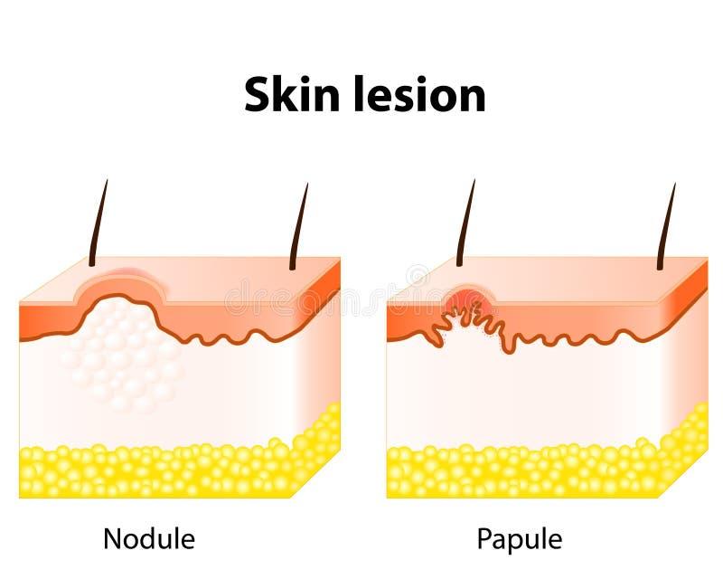 Lesione cutanea illustrazione vettoriale