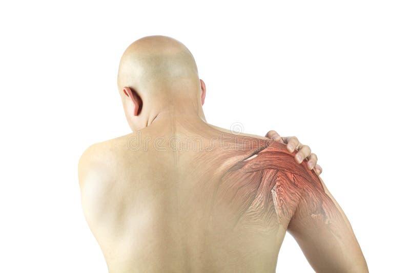 Lesione del muscolo della spalla fotografie stock libere da diritti