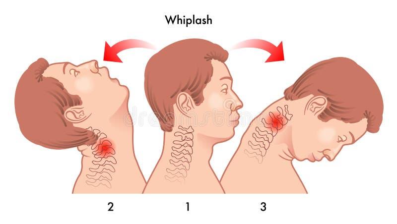 Lesione di colpo di frusta