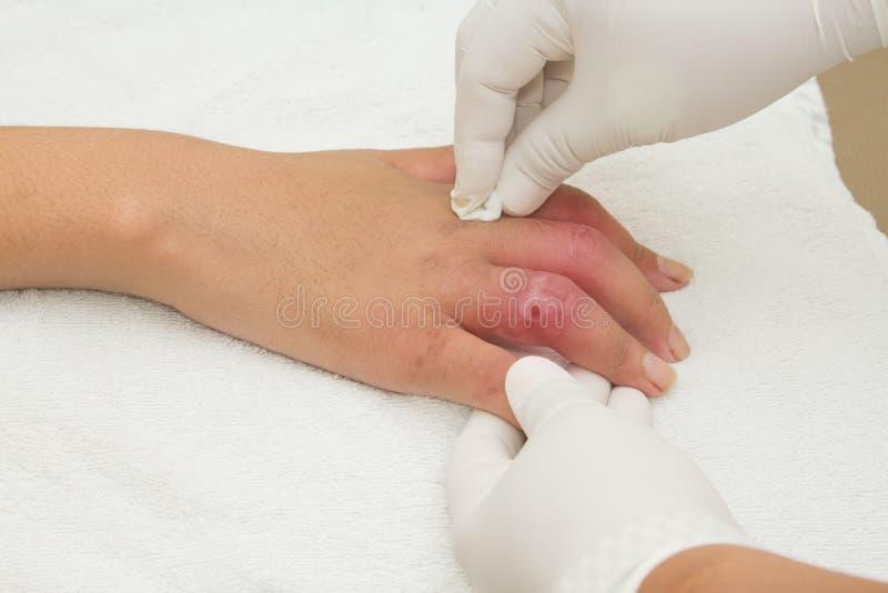 Lesione di mano dopo l'incidente stradale fotografie stock libere da diritti