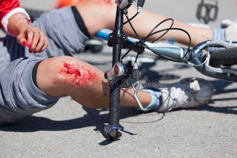 Lesiones de la caída de la bici imagenes de archivo