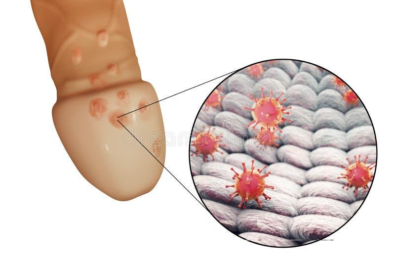 Lesiones De Los Virus De Herpes Genital Stock de