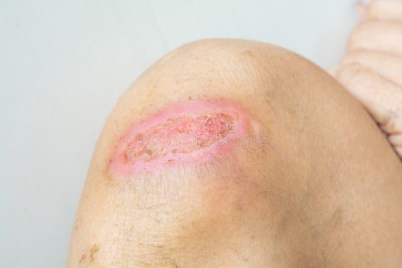 Lesiones y lesiones de rodilla fotos de archivo libres de regalías