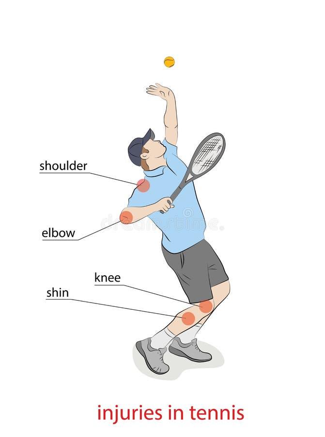 Lesioni nel tennis la designazione dei posti traumatici royalty illustrazione gratis