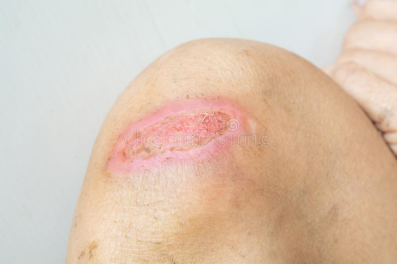 Lesions and knee injuries. Lesions from accident royalty free stock photos