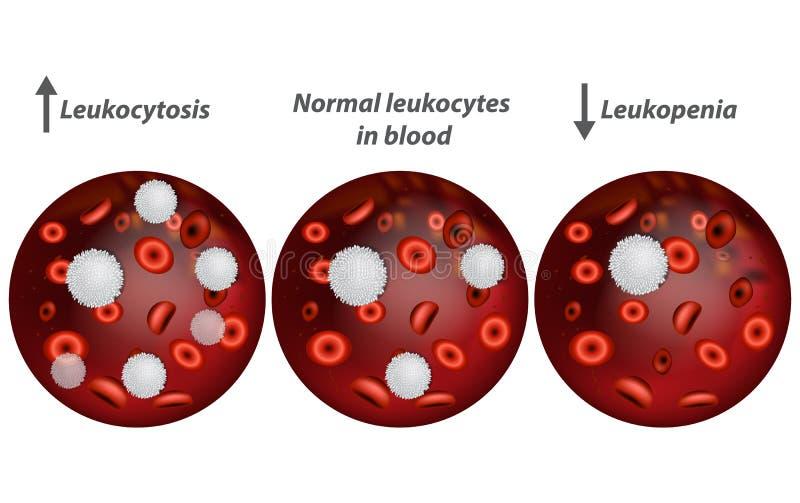 Leucocitosis y leucopenia ilustración del vector