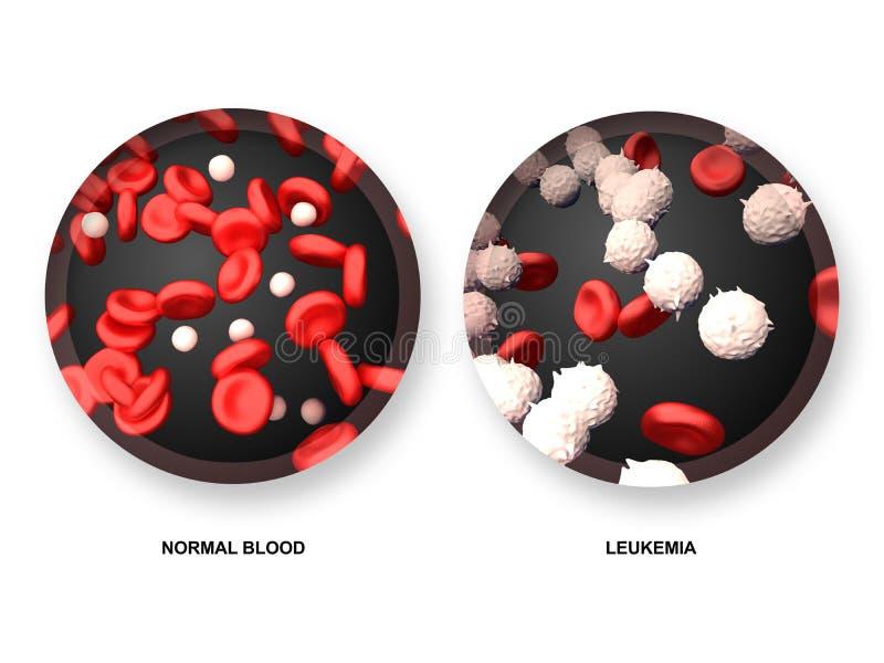 Leukämie gegen normales Blut stock abbildung