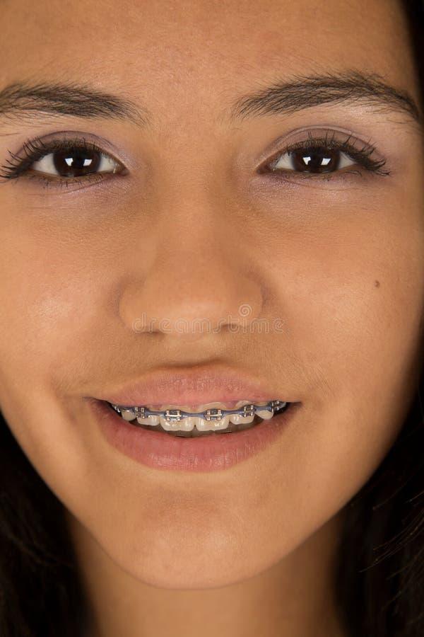 Leuk Spaans tienermeisje die steunen bij haar tanden het glimlachen dragen stock afbeeldingen