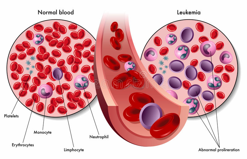 Leukemia. Medical illustration of the symptoms of leukemia in the blood