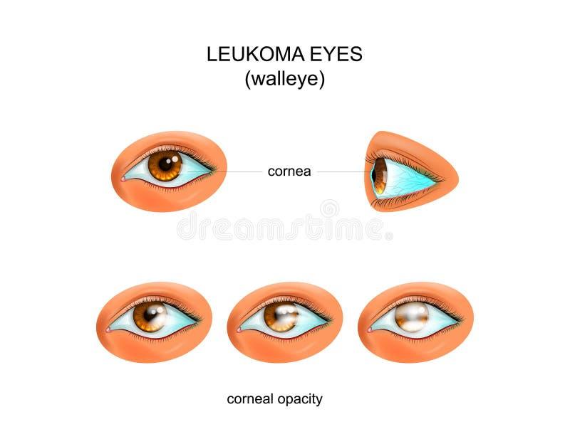 Leukoma eyes. walleye. Vector illustration of a white eye. walleye stock illustration