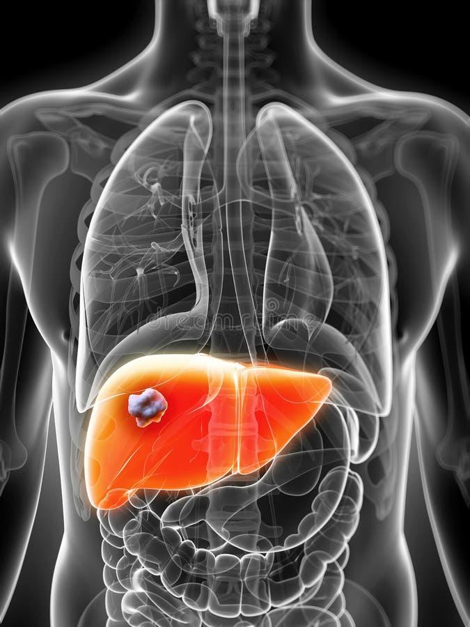 Lever - cancer royaltyfri illustrationer
