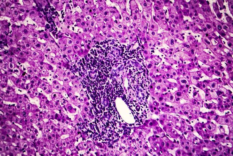 Leverschistosomiasis, ljus micrograph arkivbilder