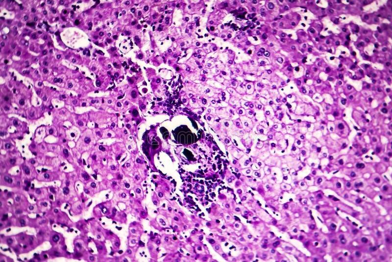 Leverschistosomiasis, ljus micrograph royaltyfria bilder