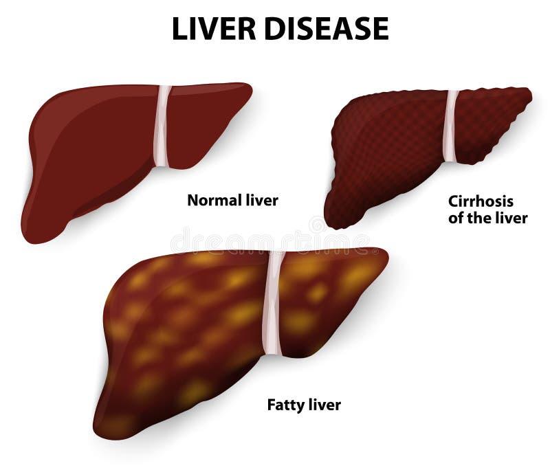 Leversjukdom stock illustrationer