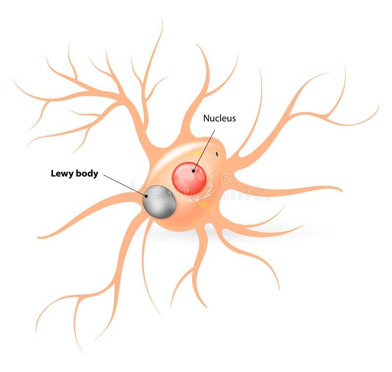 Lewy kropp Parkinsons sjukdom och Alzheimers sjukdom royaltyfri illustrationer