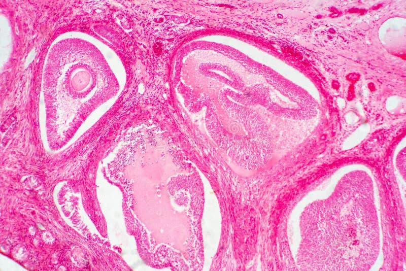 Lichte microscopisch van menselijke eierstok die primaire en secundaire follikels tonen stock foto's