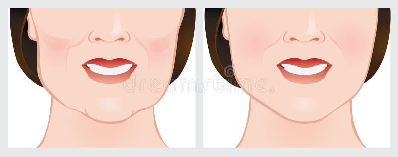 Lifting facial usando llenadores cutáneos stock de ilustración