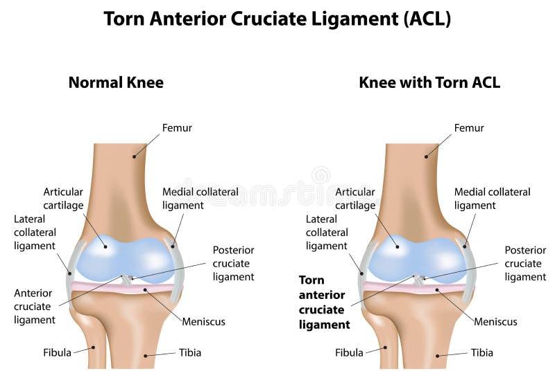 Ligamento cruciforme anterior rasgado de la junta de rodilla stock de ilustración