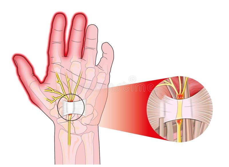 Ligamento transversal del carpal ilustración del vector