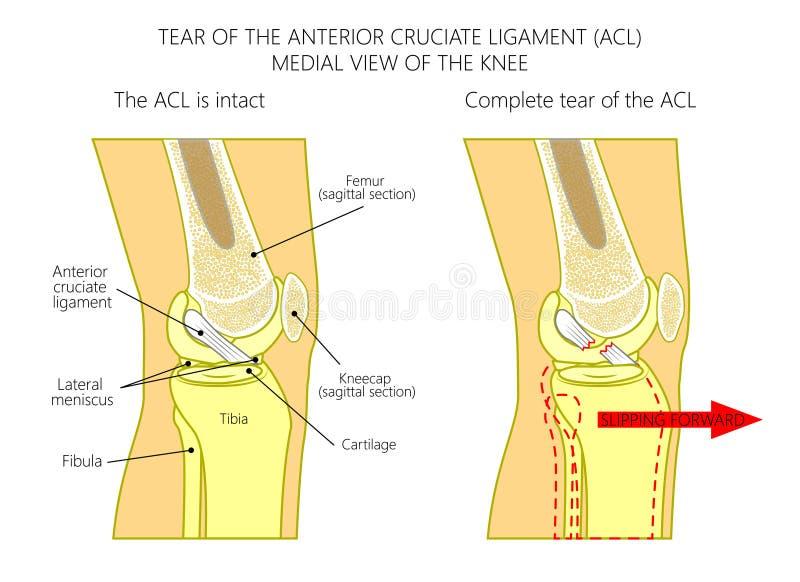 Ligamentos Del Ligamento Cruciforme Anterior Del Knee_Torn ...