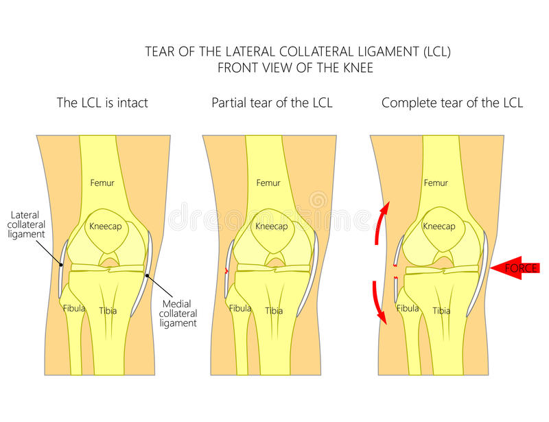 Ligaments Of The Knee_Tear Of The Lateral Collateral Ligament Stock ...