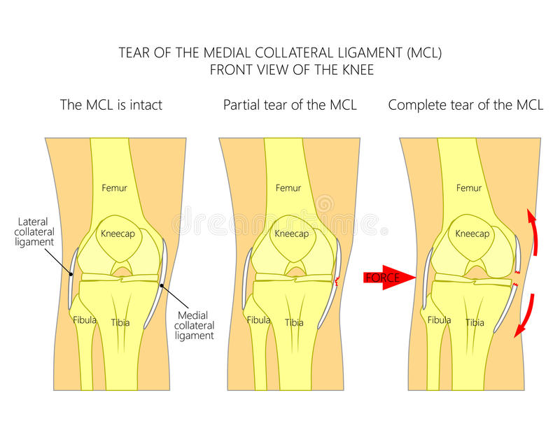 Ligaments Of The Knee_Tear Of The Medial Collateral Ligament Stock ...