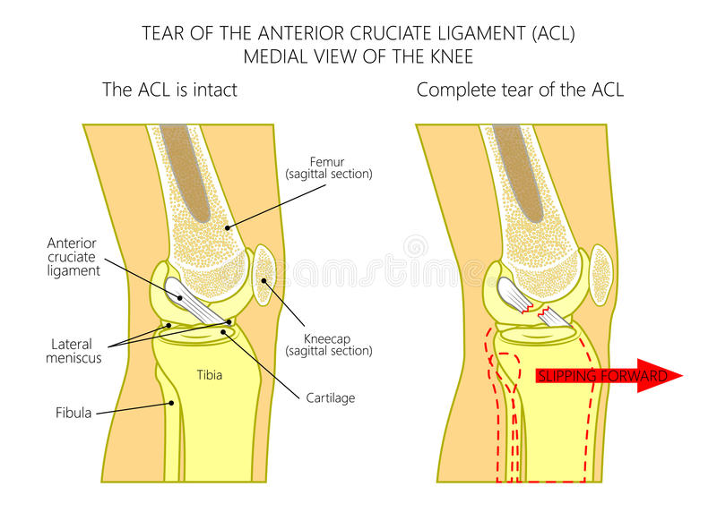 Ligaments of the knee_Torn anterior cruciate ligament. Vector illustration anatomy of a knee joint with healthy and torn anterior cruciate ligament. Side or stock illustration
