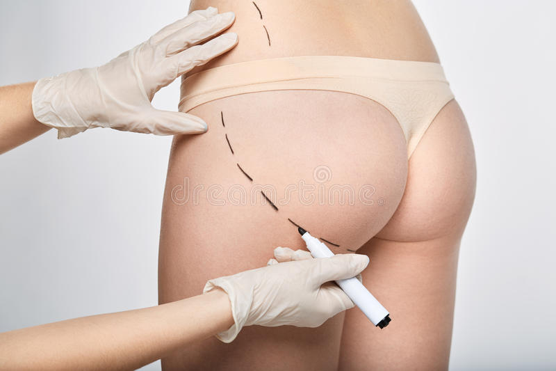 Ligne pointillée de chirurgie sur le corps images libres de droits