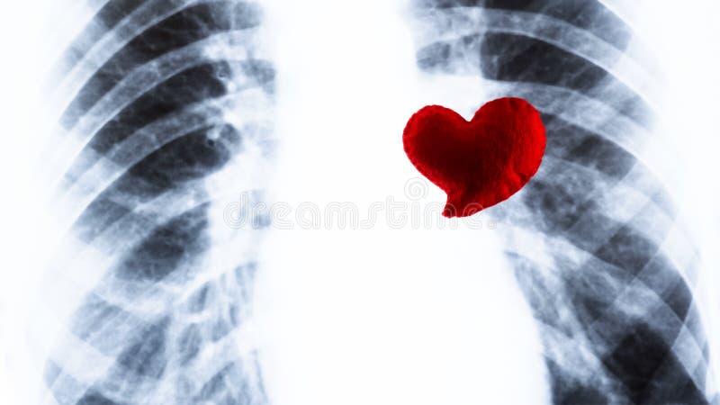 Ligt het herinnerings rode hart op de borströntgenstraal Fluorography en de Dag van Valentine in geneeskunde Concept hartchirurgi stock foto's