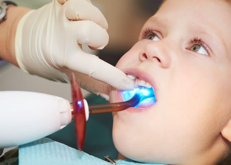 Limage dentaire de dent d'enfant près photo stock
