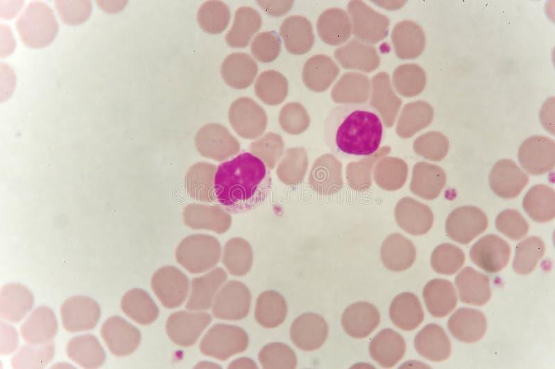 Limfocyt komórka w krwionośnym rozmazie fotografia stock