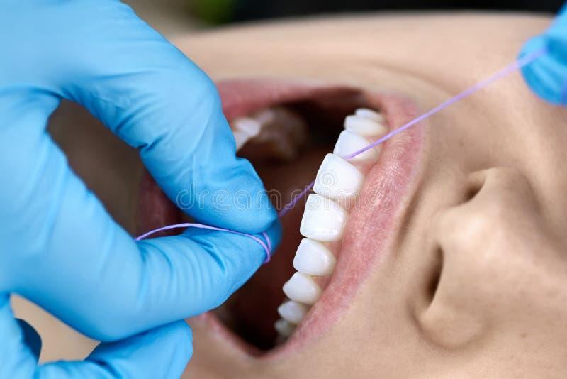 Limpeza de dentes de mulher bonita em clínica dentária fotografia de stock