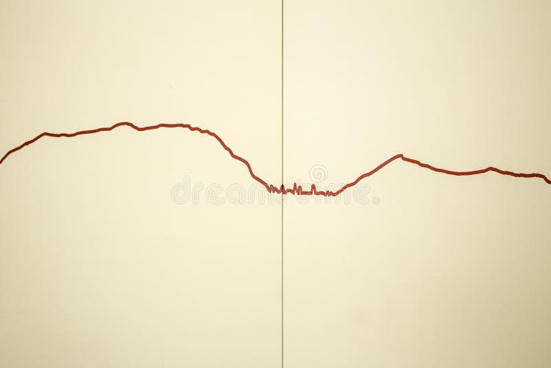 Linee dell'elettrocardiogramma della parete fotografia stock libera da diritti