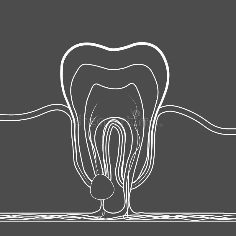 Linjär symbol för tand- sjukdom Den medicinska illustrationen av tanden rotar inflammation, tand rotar cystan, pulpitis stock illustrationer