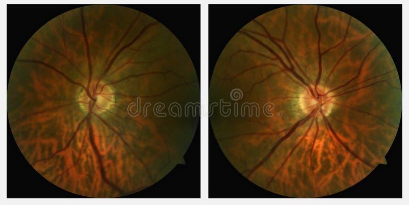 Linke und rechte Augenscans stock abbildung