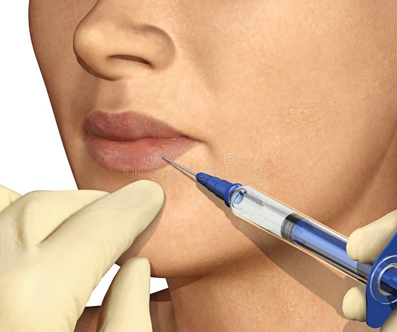 Lip Enhancement Injection stock illustration
