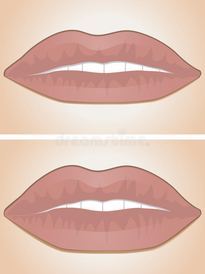 Free Lip Filler Before And After Royalty Free Stock Photo - 20899995