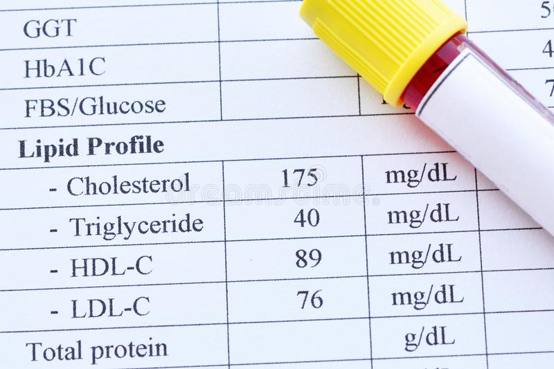 Lipid profile test result with blood sample tube royalty free stock images