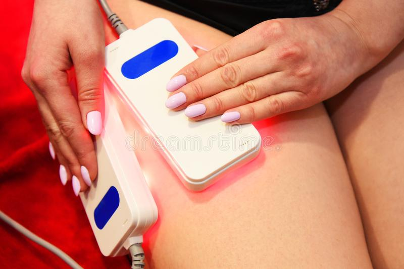 Lipo laser. Hardware cosmetology. Body care. Non surgical body sculpting. body contouring treatment, anti-cellulite and anti-fat t royalty free stock photo