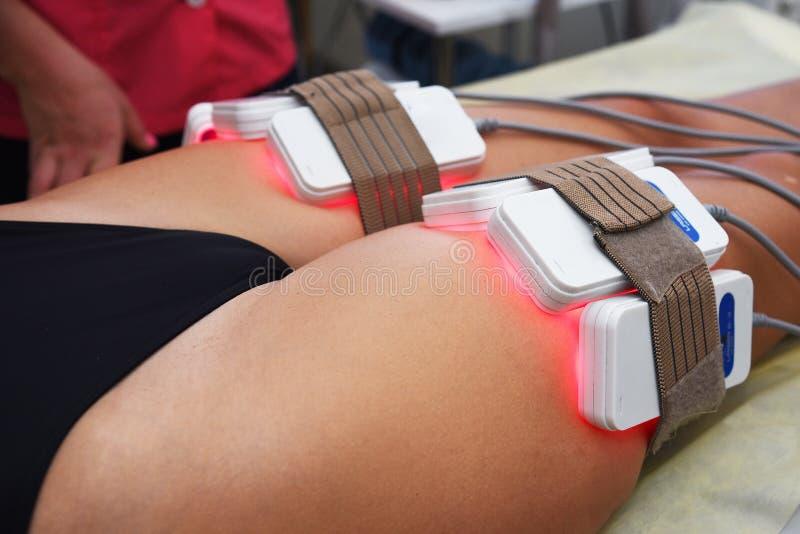 Lipo laser Narzędzia kosmetologia ciało opieki zdrowia spa nożna kobieta wody Non chirurgicznie ciało sculpting ciało obrysowywa  obraz royalty free