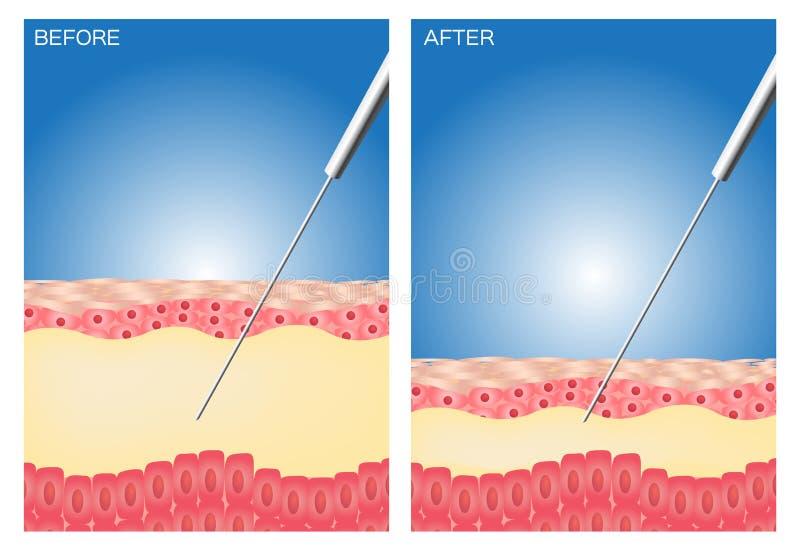 Lipoaspiração antes e depois de, gordura, dieta, cirurgia, lipoaspiração perfeita ilustração stock