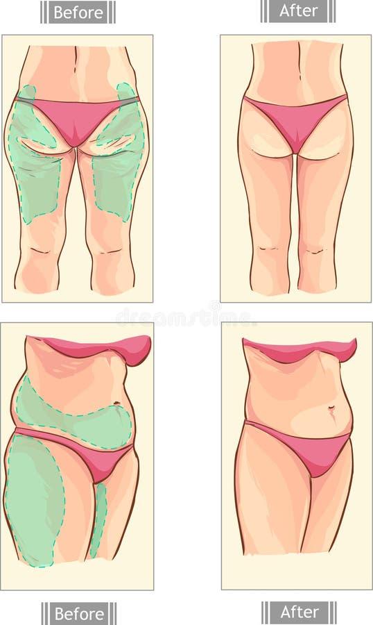 liposuction libre illustration