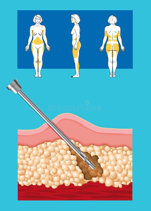Liposuction. Schema di intervento di liposuzione